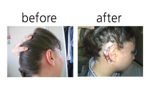My head, before and after cochlear implant surgery. Not too messy if I do say so myself.